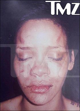 Rihanna défigurée